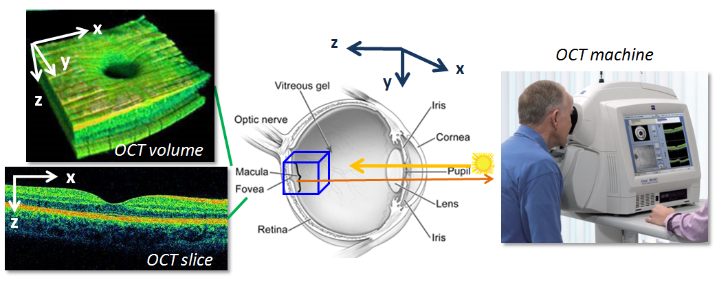 Automated Macular Pathology Diagnosis in Retinal OCT Images